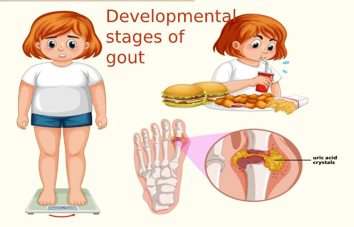 Developmental stages of gout