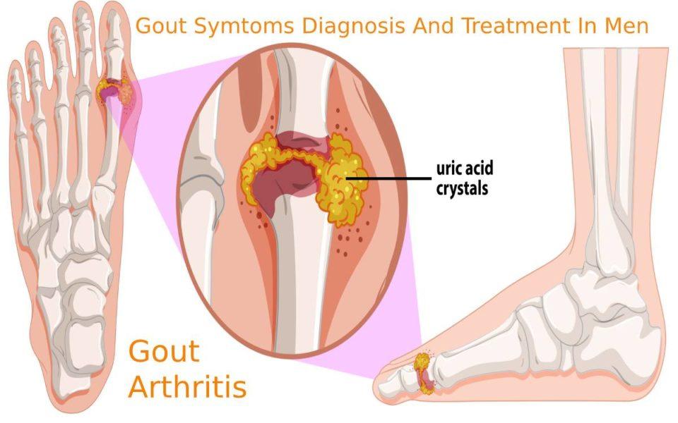 Human Gout arthritis