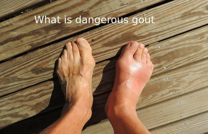 What is dangerous gout