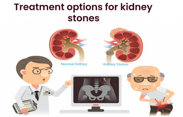 Treatment options for kidney stones