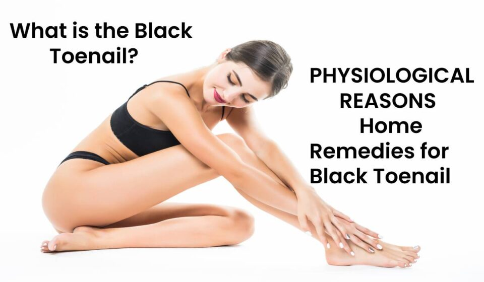 Home Remedies for Black Toenail